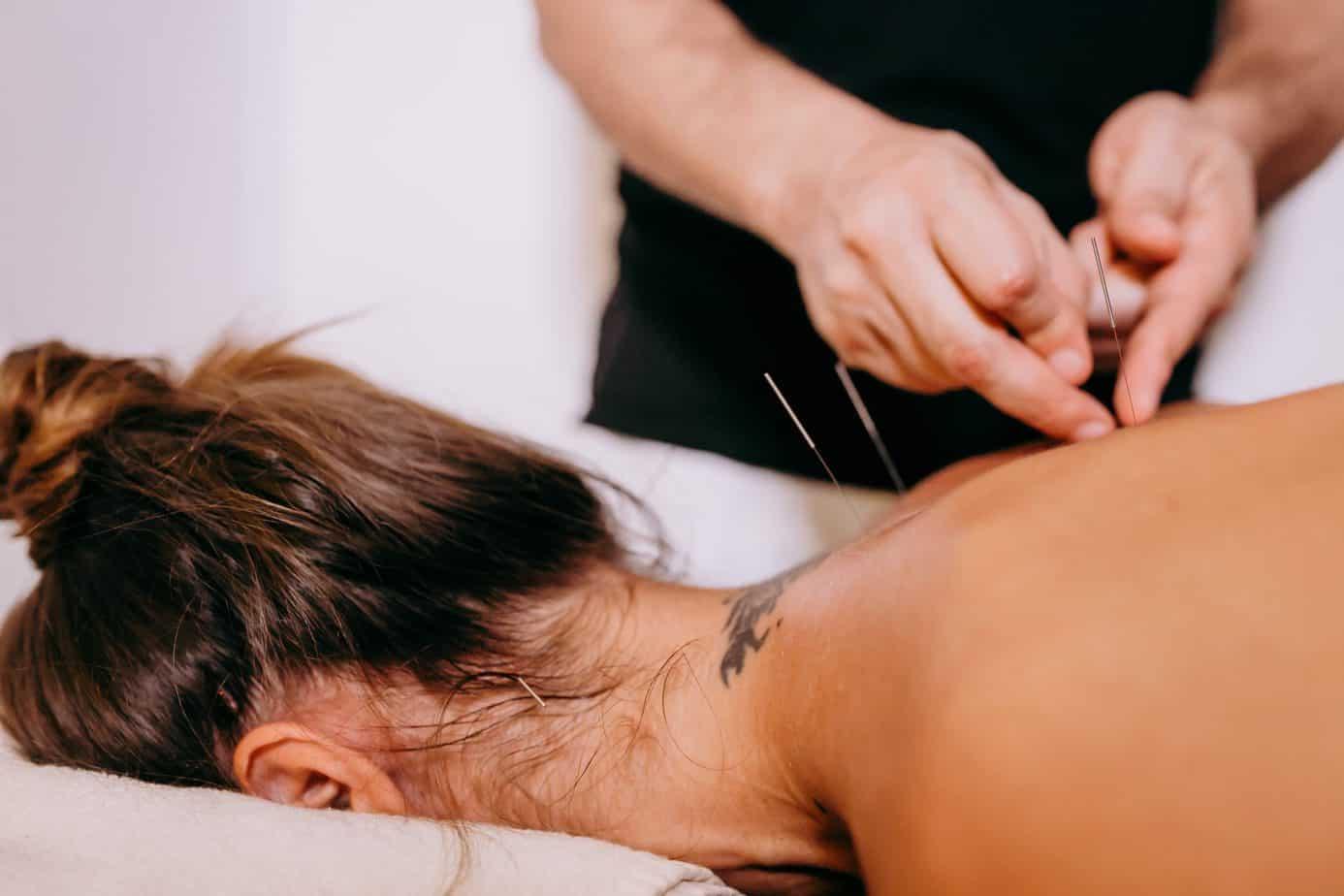 Acupuncture pour l'insomnie : que dit la médecine traditionnelle chinoise